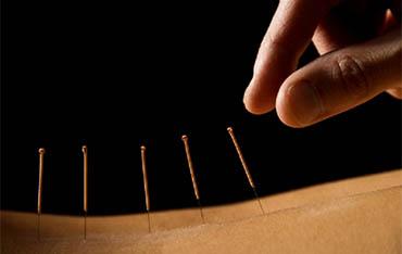Acupunctuur en chinese geneeskunde